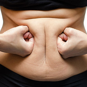 How to Get Rid of Cellulite on Your Abdomen