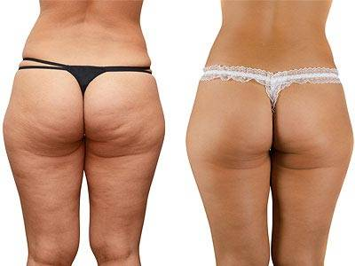 Treating Cellulite: Before and After