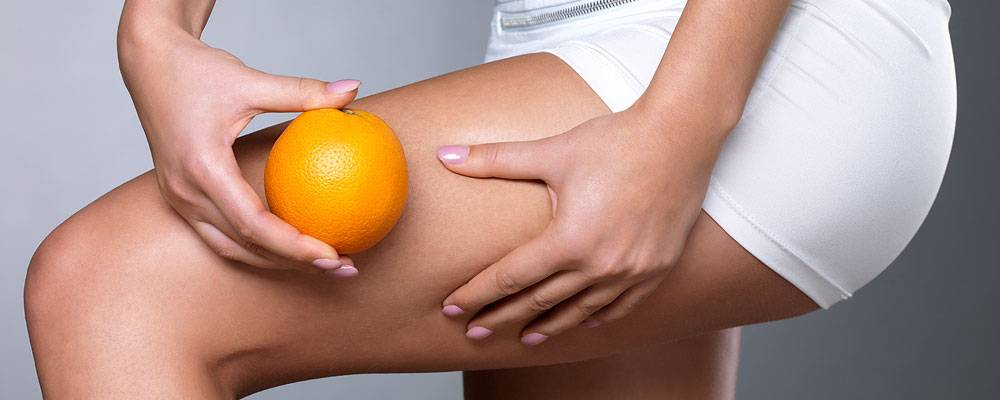 Cellulite and How it is Formed