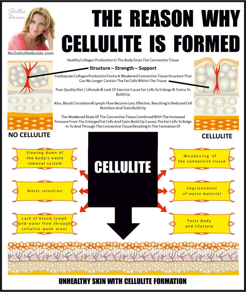 How is Cellulite Formed?